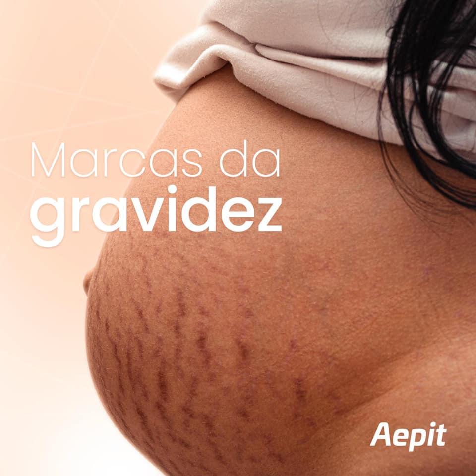 Estrias na gravidez